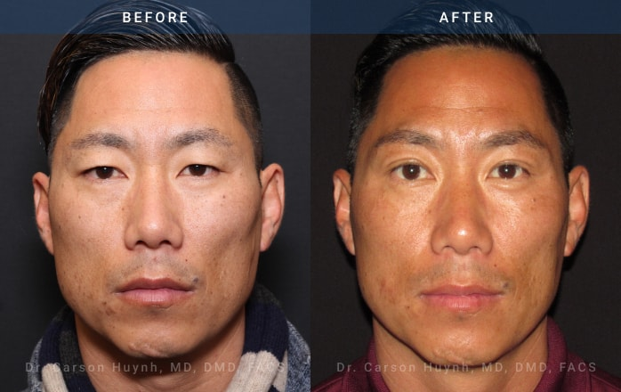 Brow lift (front view) and blepharoplasty at Radiance Surgery & Aesthetic Medicine