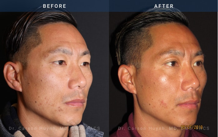 Brow lift (3/4 view) and blepharoplasty at Radiance Surgery & Aesthetic Medicine