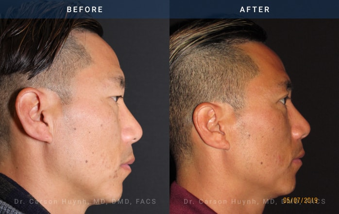 Brow lift (side view) and blepharoplasty at Radiance Surgery & Aesthetic Medicine
