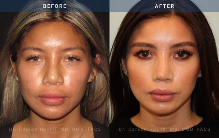 Rhinoplasty front view before and after picture
