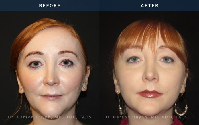 brow lift at Radiance Surgery & Aesthetic Medicine