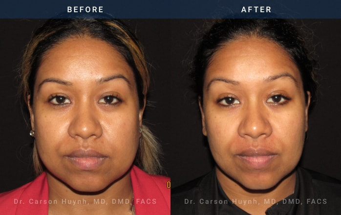 buccal fat reduction frontview