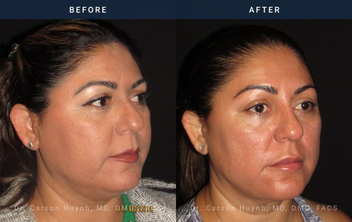 buccal fat reduction 3/4 view