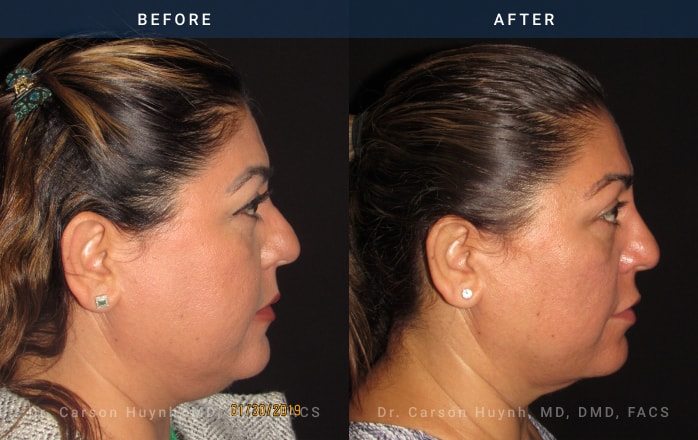 buccal fat reduction side view