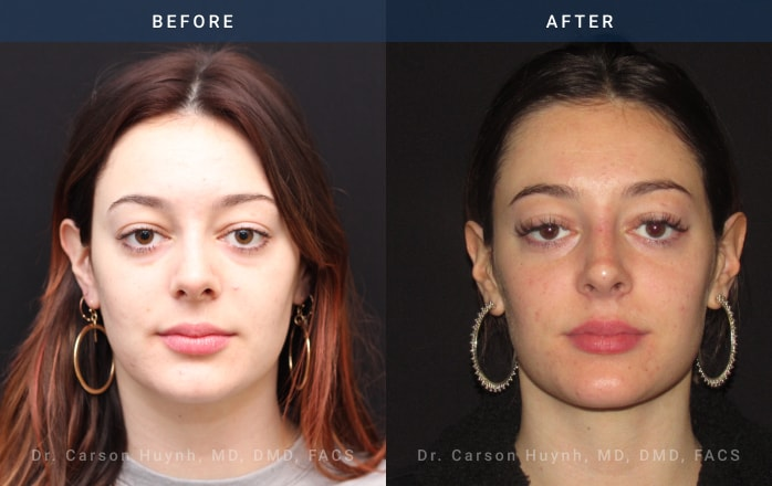 nonsurgical rhinoplasty front view