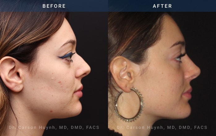 nonsurgical rhinoplasty side view