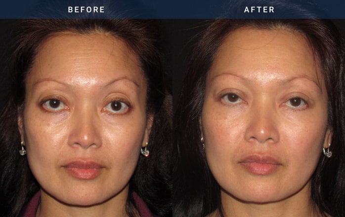Asian Blepharoplasty (front view)