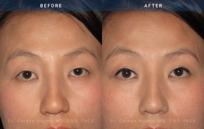 Blepharoplasty with ptosis at Radiance Surgery & Aesthetic Medicine