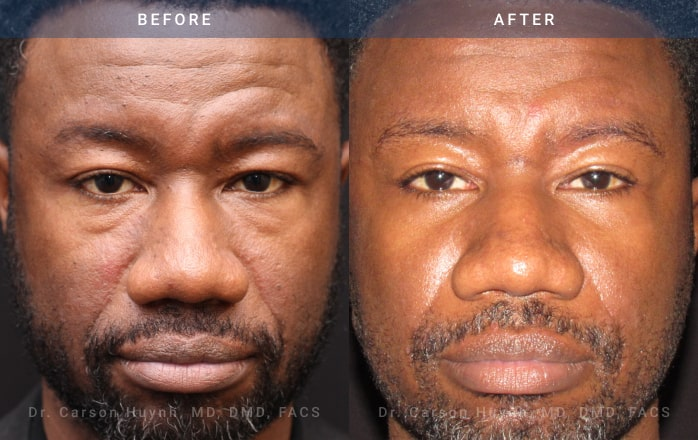 Blepharoplasty front view Radiance Surgery & Aesthetic Medicine