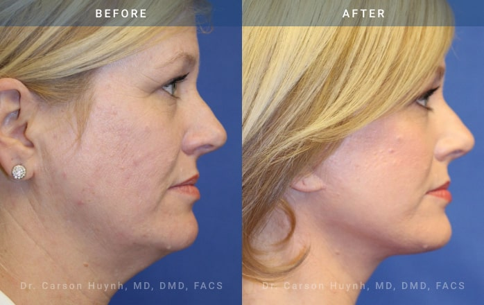 facelift side view at Radiance Surgery & Aesthetic Medicine