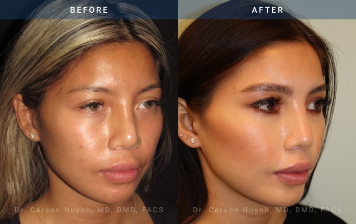 Rhinoplasty 3/4 view before and after picture