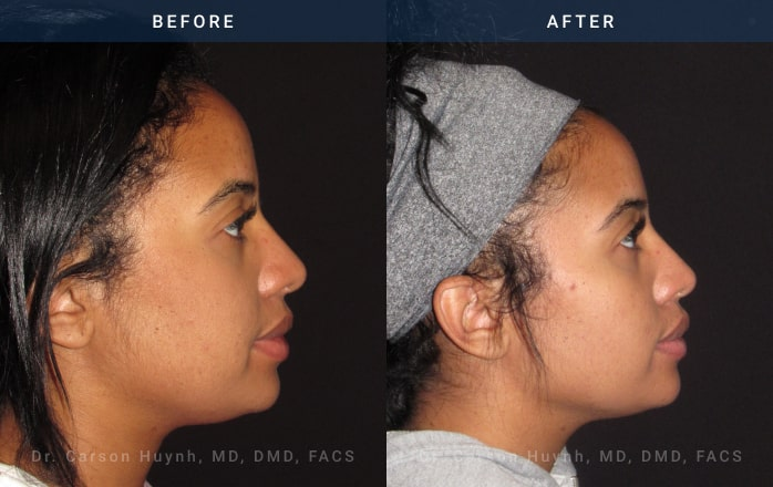 Rhinoplasty side view at Radiance Surgery & Aesthetic Medicine