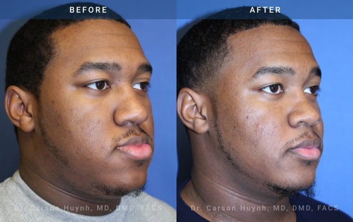 3/4 view of man who had Orthognathic surgery