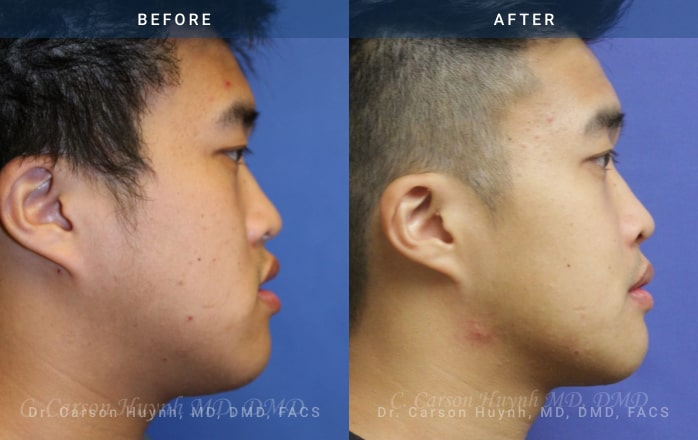 Side view of man who had Orthognathic surgery