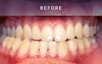 Teeth view - before picture of orthognathic surgery