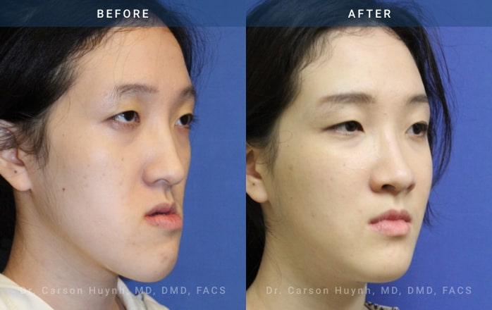 3/4 view of woman who had Orthognathic surgery
